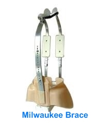 milwaukee brace